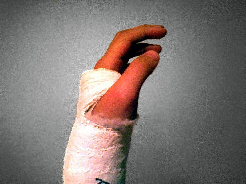 Bone Fracture Injuries
